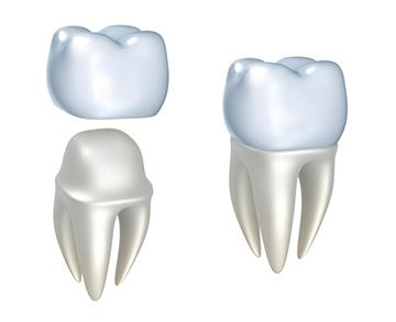 krunice za zube