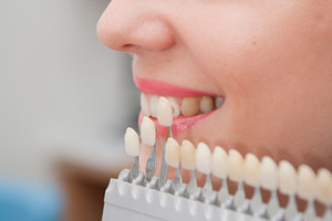 zubne fasete