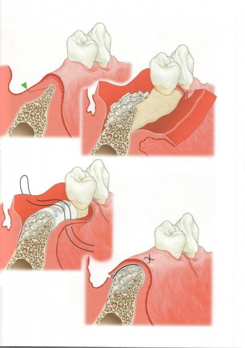 ugradnja vestacke kosti