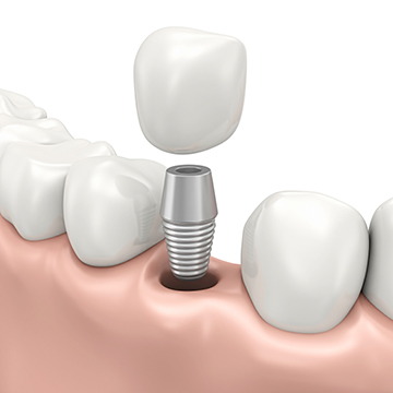 zubni implanti srbija