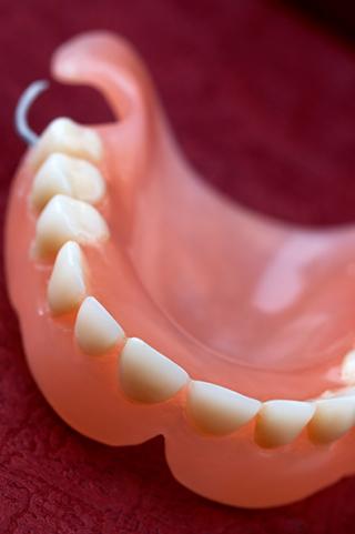 proteza za zube Srbija